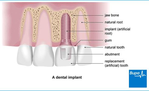 Dental implants women in 40s during perimenopause/menopause, is there special considerations, risks with hormonal fluctuations? Not postmeno.