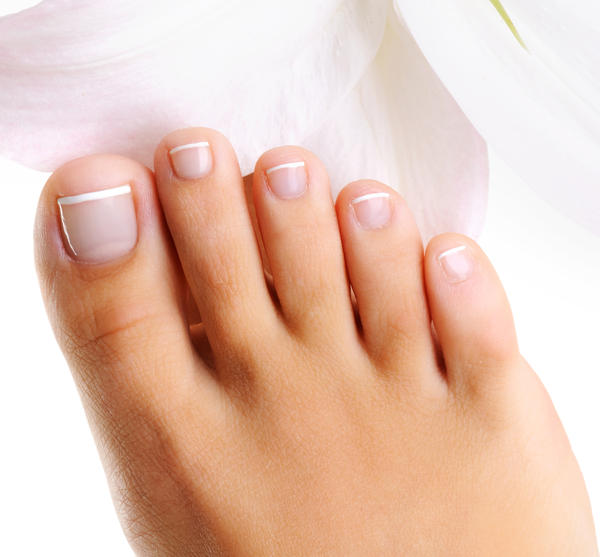 What cause horizontal ridges in toenails? I have horizontal ridges that sometimes look like another layer on both big toenails. My toenails are dry