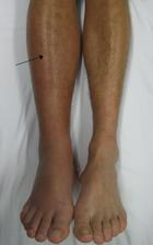 Deep_vein_thrombosis