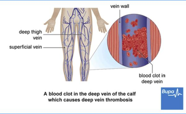 What causes blood clots in the leg?