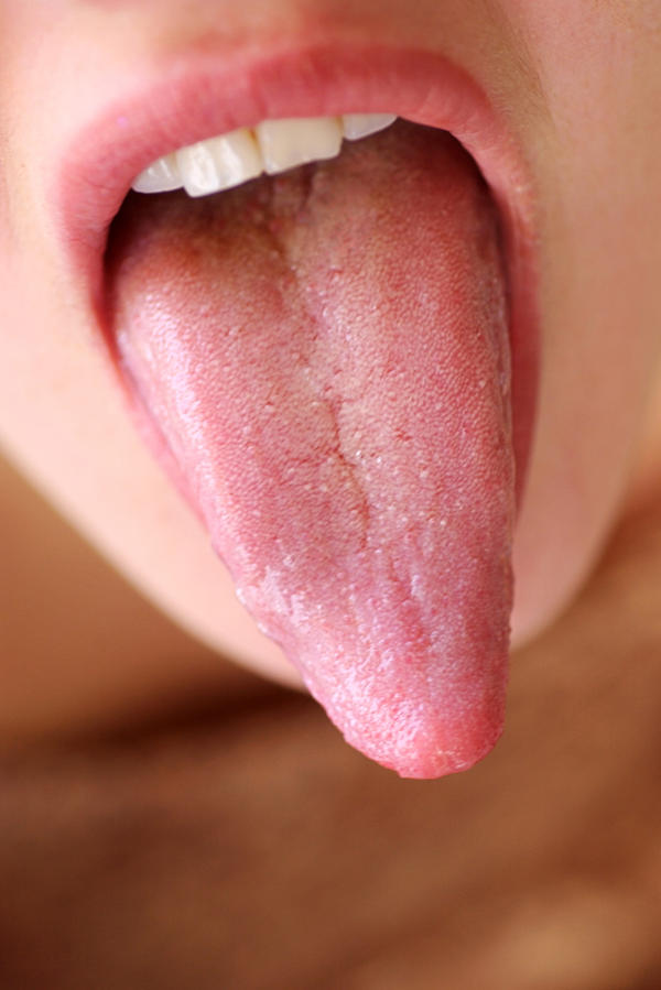 "Raised ridge along tongue floor, ~1/2"" on each side of where tongue connects to floor; has white spot on it; can move it w/ tip of tongue; sore throat?"