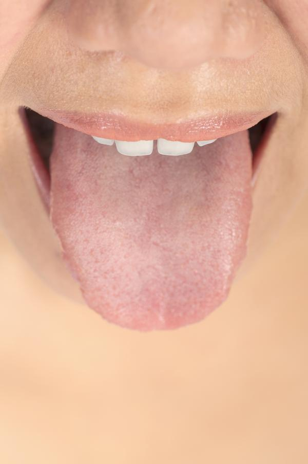 Swollen foliate papillae on right side of tongue?