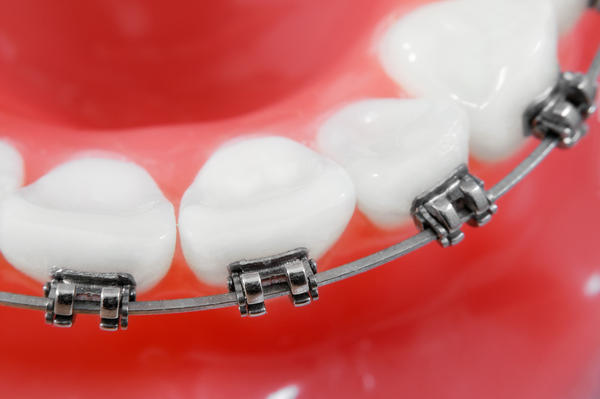 What problems can braces fix, aside from crooked teeth?