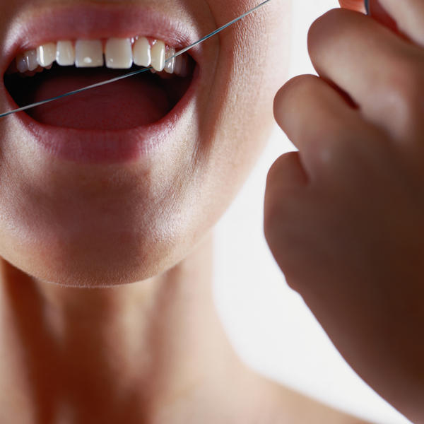 How often do you floss before you cause gum recession to your teeth? I floss twice or more between each tooth for 5 years. I think it may cause it