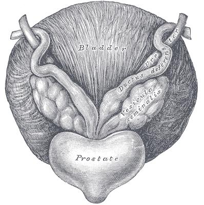 What does it mean for an elderly man with prostate problems if passing blood clots in urine?