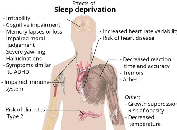 Tell me what are symptoms of sleep deprivation?