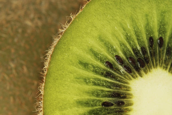 Eaten kiwi many times before. When I cut skin off them now, my arms& hands break out in hives. Am I now allergic to kiwi or is it the skin on them?