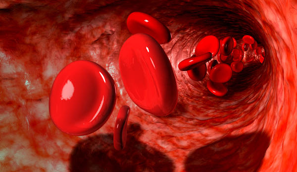 If I have sickle cell trait is it possible to now be sickle cell anemia?
