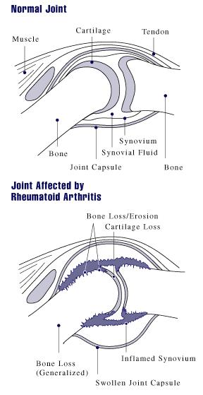 What are the signs of rumetoid artitius? Swollen joints a lot of pain
