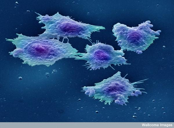 Can you give a cancer cell an equal but opposite cancer cell to cancel them out?