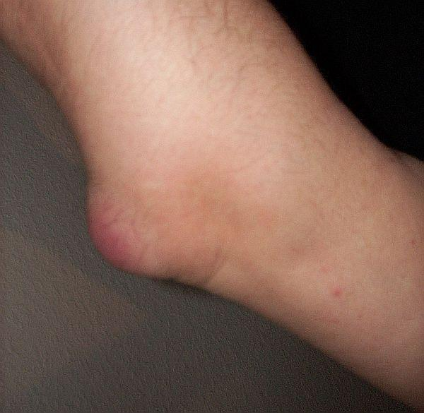 Have pain around back of elbow for 5 weeks now swelling just started, hurts more to fully extend and bend, what could it be and what to do about it?
