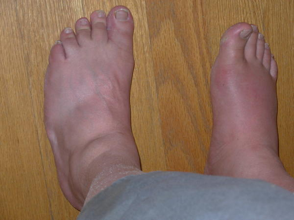 How common is it for somebody to get toe swelling?