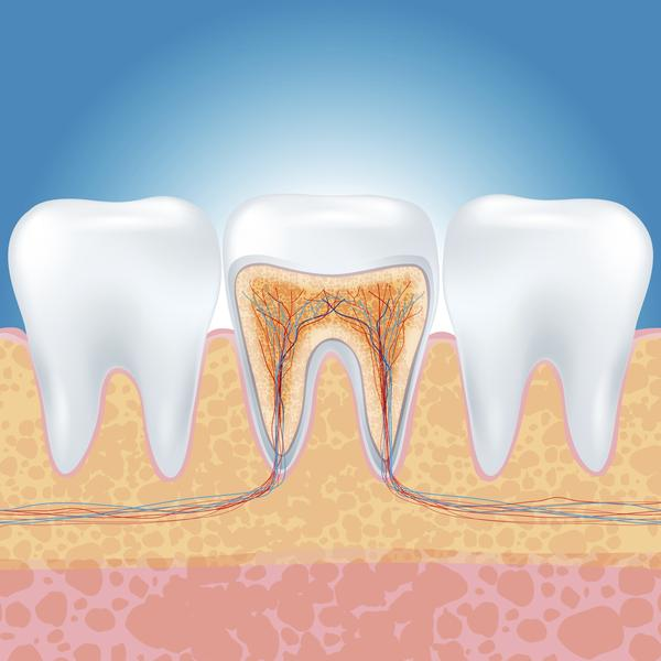 What is a 'hot' nerve in a tooth that needs root canal?