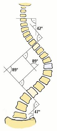 How can I straighten 14 degree curve in spine?
