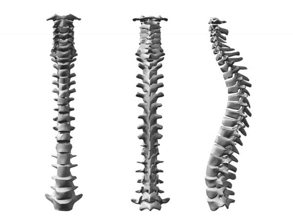What does it mean to have congenital spinal stenosis?