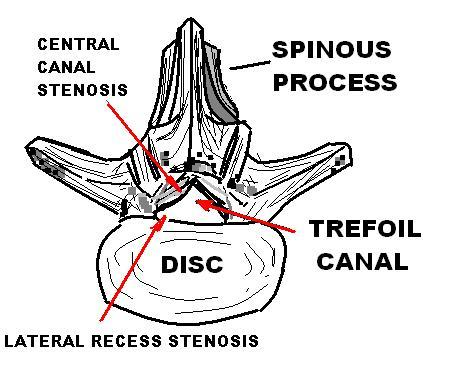 What does it mean to have advanced spinal stenosis?