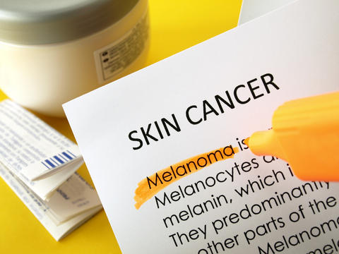What is the prognosis for survival for a man who is 61 that has melanoma skin cancer with recurring lesions?