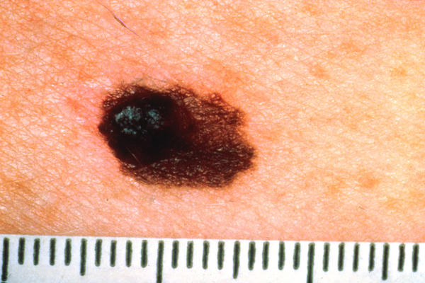 I picked on a mole then there was a scab and the mole was gone and