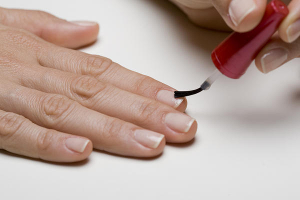 How can you treat a bruised fingernail?