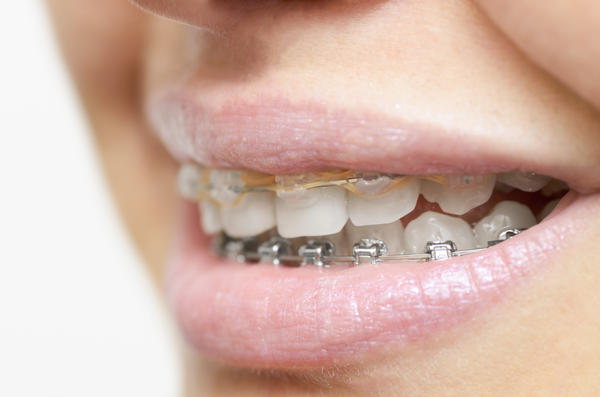 After braces, why does it still look like my daughter has an overjet when she talks, but when she bites  it is only a 2 mm overjet? Can that be fixed?