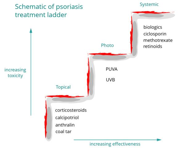 What is the difference between psoriasis roseola and eczema?
