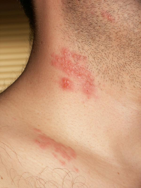 What is this itchy painful rash on my shoulder ? Have history of shingles.