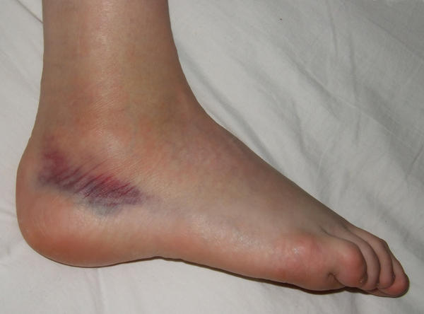 I was zip lining and at the end of the zip line was a block of about 50 pounds. I was going at about 30 mph and slammed my heel in it. Now it's purple and swollen. What should I do?