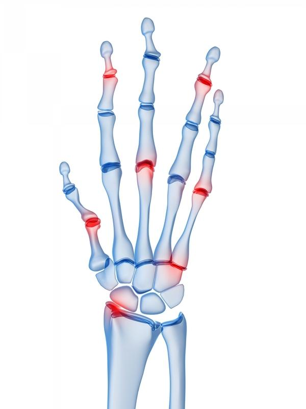 What can cause bilateral joint pain?  Began in knee's and now fingers, wrists, lump on each arm by wrist. Ra/lupus test neg 3yrs ago, not fibromyalgia