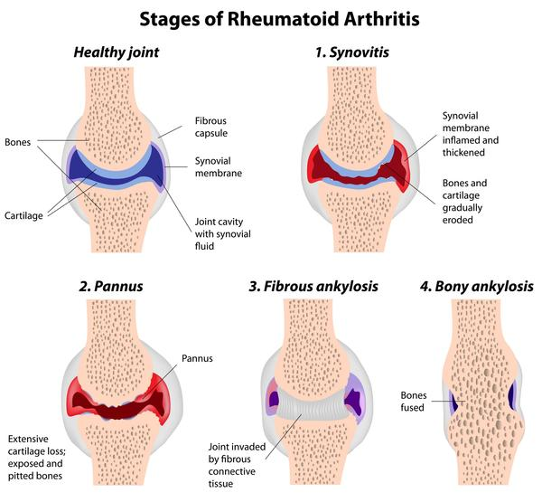What are the most common symptoms of rheumatoid arthritis?