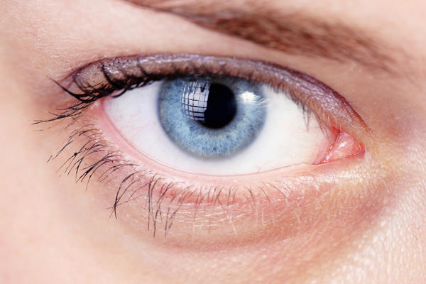 How long does increased tearing associated with conjunctivitis last?