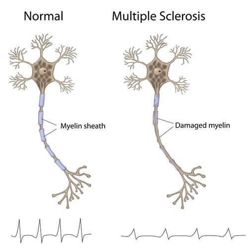 Can any form of muscular dystrophy cause lesions in the brain useen with multiple sclerosis?