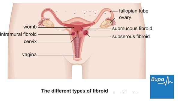 What can be a cause for fibroids on the ovaries? They are benign but have severe pain