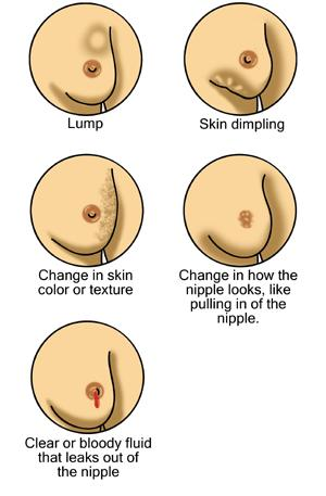 Are tumors in your breast always associated with breast cancer?