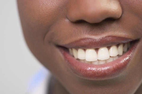 Can a canker sore be black? Why?
