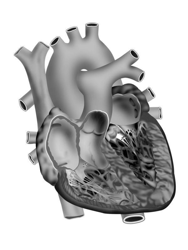 What is the most common fix if a baby is born with a semi-large hole in their heart?