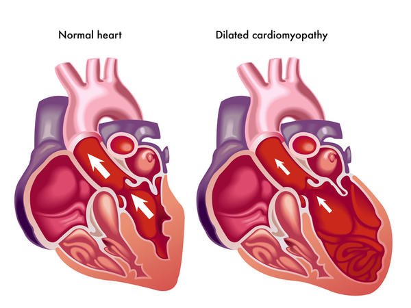 What is cor pulmonale or dilated cardiomyopathy?