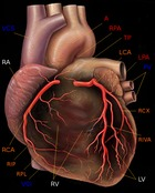 Coronary_artery_disease