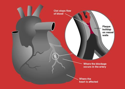What are the chances of survival after a small heart attack that causes a cardiac arrest?