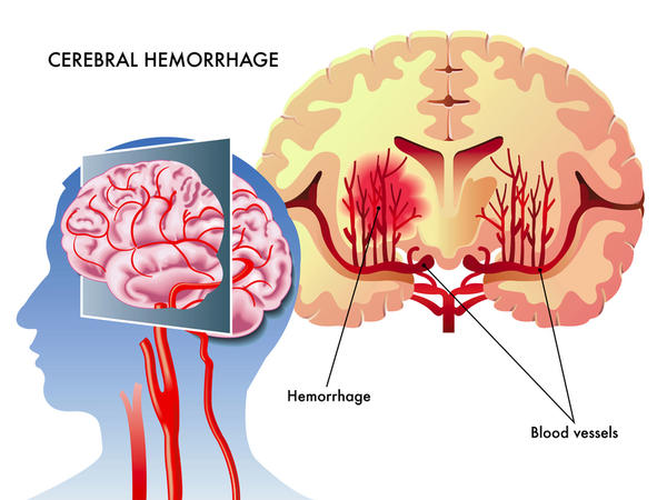 Can you tell me how the diagnosis would be made whether a stroke was caused by hemorrhage or other cerebral infraction (thrombus/embulus)?