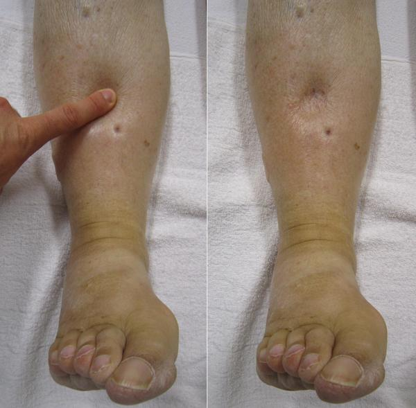 Can a gross edema result in an amputation?