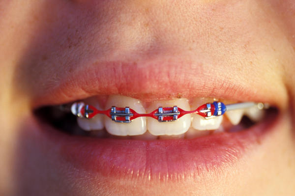What are the orthodontic appliances used to correct an overbite?