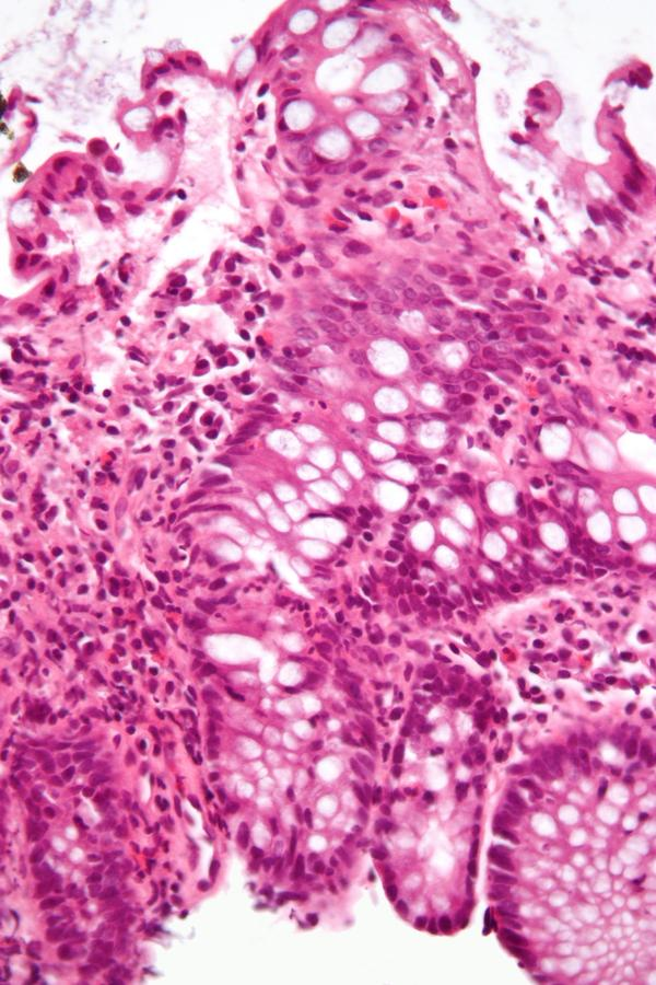 What is the cause of chrons vs ulcerative colitis?