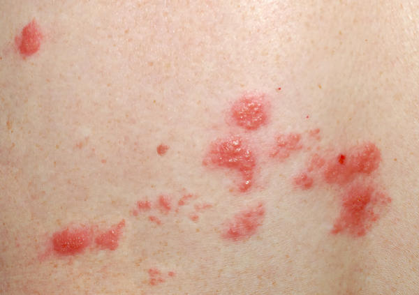 Could arthritis cause itchy bumps?