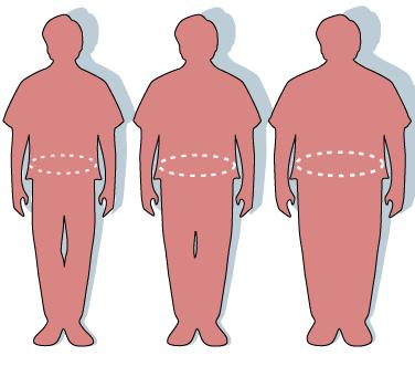 Obesity cause and solutions?