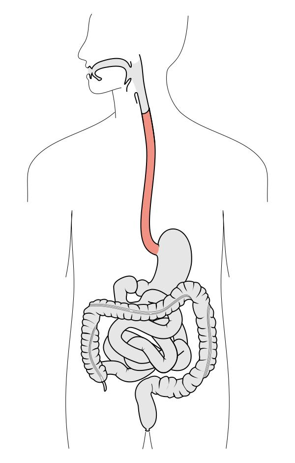 What is the definition or description of: esophagoscopy?