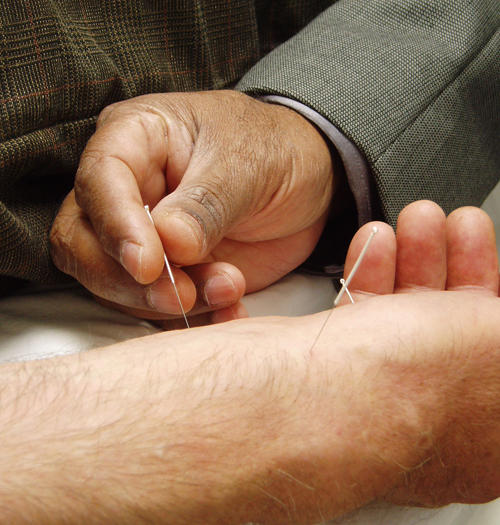 Is the acupuncture treatment needed daily for body pains and other health problems?