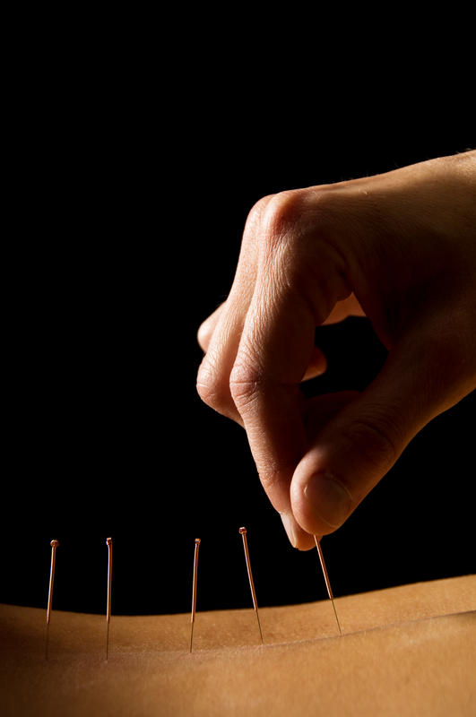 Is it possible to get nerve damage from acupuncture?