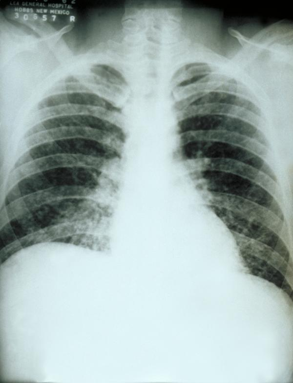 What are calcium deposits on the lungs?