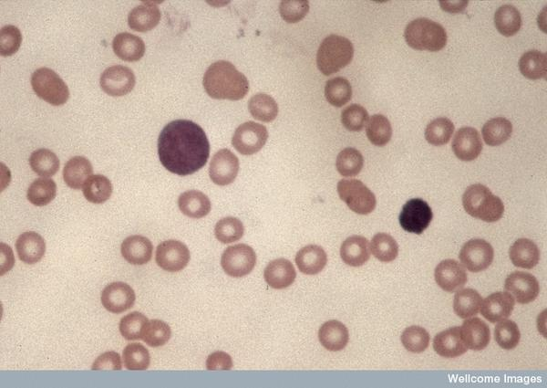 Which systems are affected by chronic myeloid leukemia?