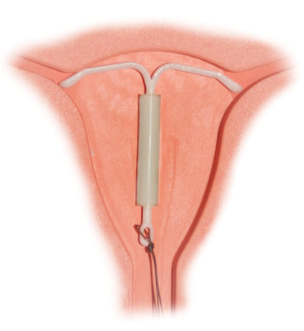 What type of complications could arise from having an IUD in the cervical canal for too long?